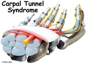 hand_carpal_tunnel_intro011